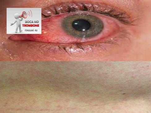 Olhos vermelhos semelhantes a Conjuntivite e marcas avermelhadas na pele que causam coceiras podem fazer parte dos sintomas